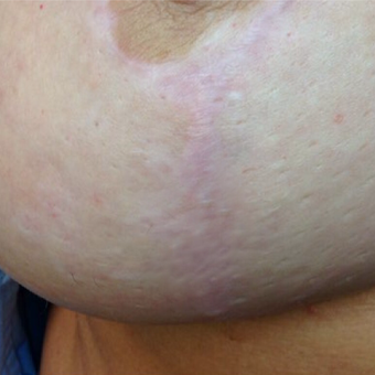 45-54 year old woman treated with Microneedling with PRP after 3524286