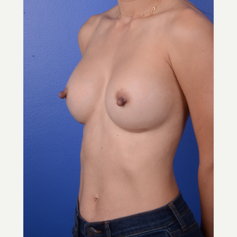 35-44 year old woman treated with Breast Implants after 3804838