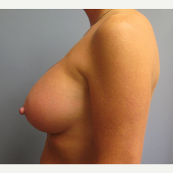 45-54 year old woman treated with Breast Augmentation after 3538901