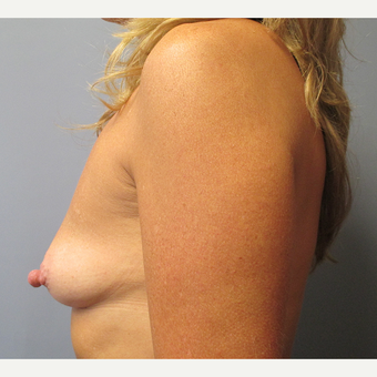 45-54 year old woman treated with Breast Augmentation before 3538901