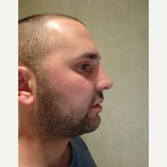 25-34 year old man treated with Rhinoplasty after 3749249