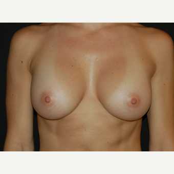25-34 year old woman treated with Breast Implants after 3650719