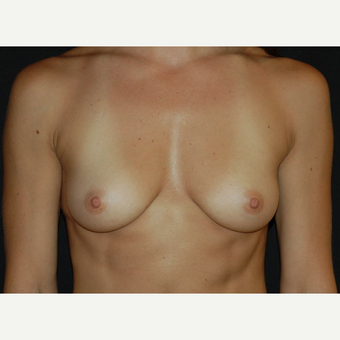 25-34 year old woman treated with Breast Implants before 3650719