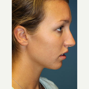18-24 year old woman treated with Rhinoplasty before 3701867