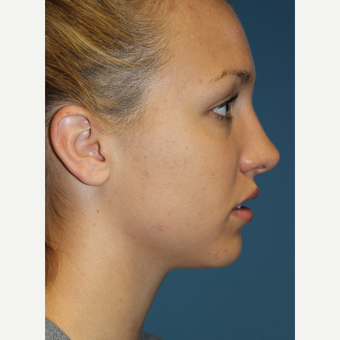 18-24 year old woman treated with Rhinoplasty after 3701867
