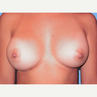 Breast Augmentation after 3732356