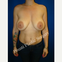 25-34 year old woman treated with Breast Augmentation before 3267864