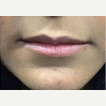35-44 year old woman treated with Juvederm before 3056317