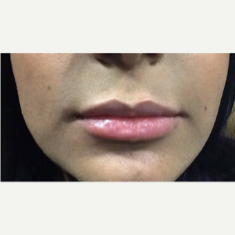 35-44 year old woman treated with Juvederm after 3056317
