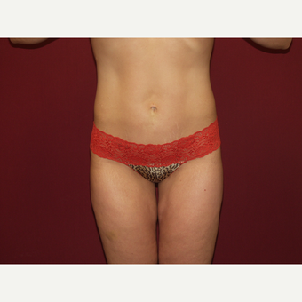 25-34 year old woman treated with Liposuction after 3454783