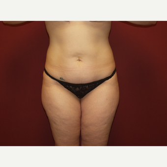 25-34 year old woman treated with Liposuction before 3454783