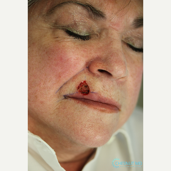 Reconstruction to lip after basal cell carcinoma