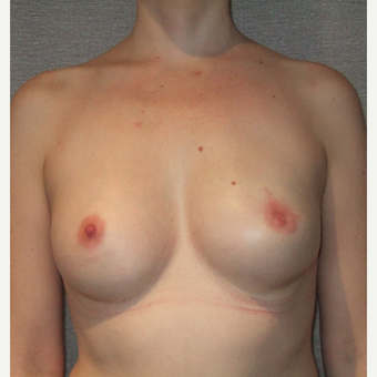35-44 year old woman treated with Breast Reconstruction after 3127552