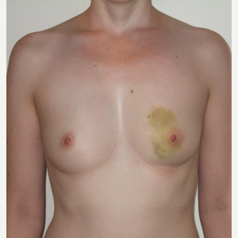 35-44 year old woman treated with Breast Reconstruction before 3127552
