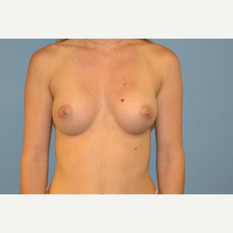 26 year old woman treated with saline Breast Implants after 3106031