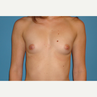 26 year old woman treated with saline Breast Implants before 3106031