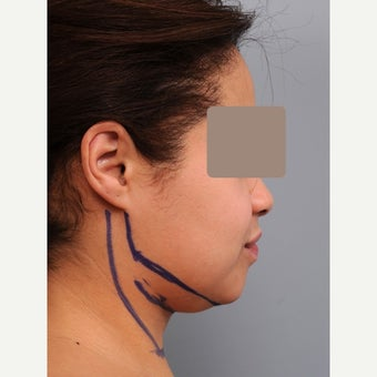 35-44 year old woman treated with Chin Liposuction before 1674774