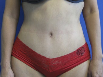 59 Year Old Female Treated for Abdominal Laxity after 1083167