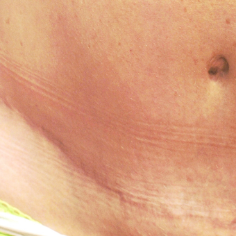 25-34 year old woman treated with Scars Treatment after 3202140
