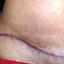 25-34 year old woman treated with Scars Treatment before 3202140