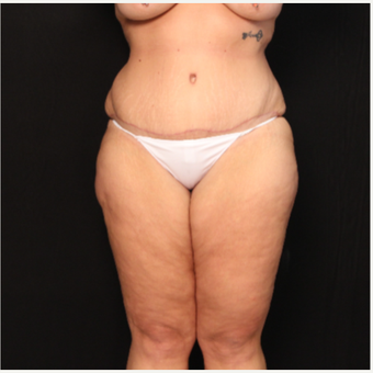 33 year old female with abdominoplasty (tummy tuck) after 3576129