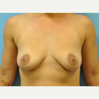37 year old woman treated with Breast Augmentation, saline implants with circumareoalar lift before 3543277