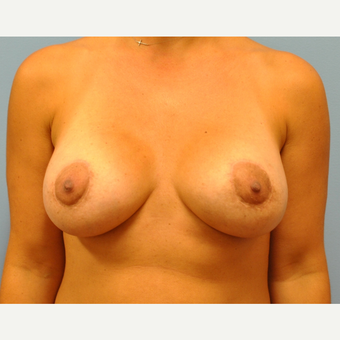 37 year old woman treated with Breast Augmentation, saline implants with circumareoalar lift after 3543277
