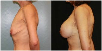 Breast lift with breast augmentation before 1271312