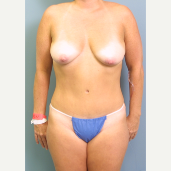 35-44 year old woman treated with Breast Lift with Implants before 3475255