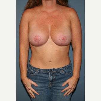 35-44 year old woman treated with Breast Lift with Implants after 3475255