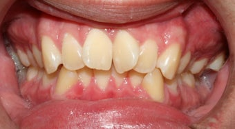 Teen Orthodontic Treatment  before 223626