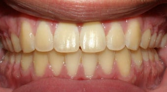 Teen Orthodontic Treatment  after 223626