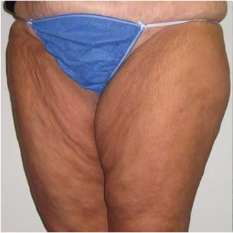 37 year old woman treated with Body Lift before 3680210