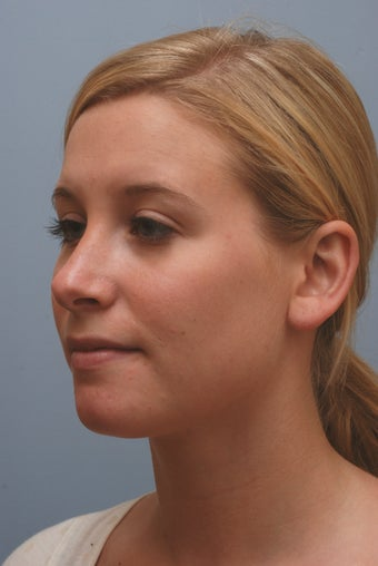 Reduction rhinoplasty with nasal tip refinement after 1097801