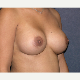 25-34 year old woman treated with Breast Augmentation after 3454839