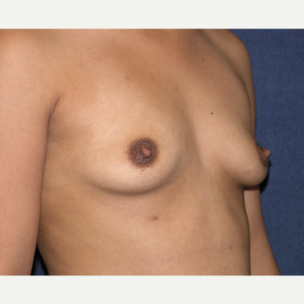 25-34 year old woman treated with Breast Augmentation before 3454839