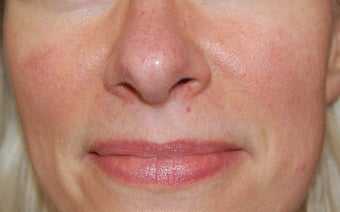 Laser treatment for facial veins and redness before 732817