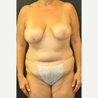 55-64 year old woman treated with Mommy Makeover before 3670976