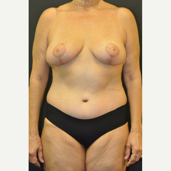 55-64 year old woman treated with Mommy Makeover after 3670976