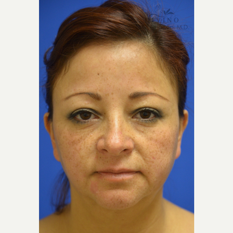 45-54 year old woman treated with Cheek Augmentation