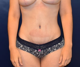 18-24 year old woman treated with Tummy Tuck after 3076852