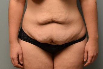 18-24 year old woman treated with Tummy Tuck before 3076852
