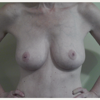 45 year old woman treated with Breast Lift after 3482520