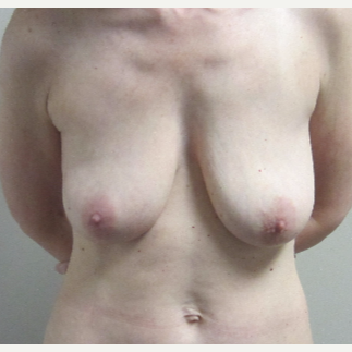 45 year old woman treated with Breast Lift before 3482520
