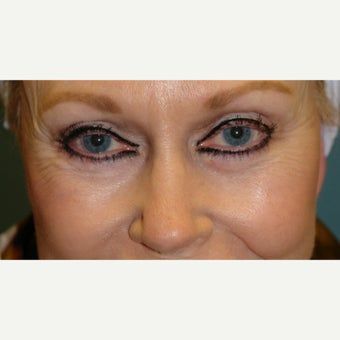65-74 year old woman treated with Botox