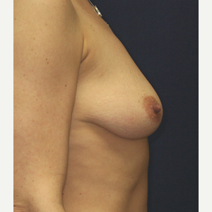 35-44 year old woman treated with Breast Lift with Implants before 3520167