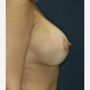 35-44 year old woman treated with Breast Lift with Implants after 3520167