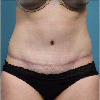 37 year old woman treated with Tummy Tuck after 3149585