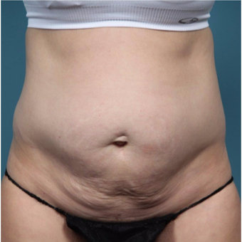 37 year old woman treated with Tummy Tuck before 3149585