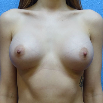 25-34 year old woman treated with Breast Augmentation after 3400535